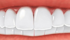 Single_Implant_After